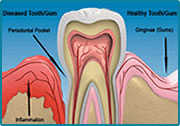 Periodontal Disease and Bad Breath
